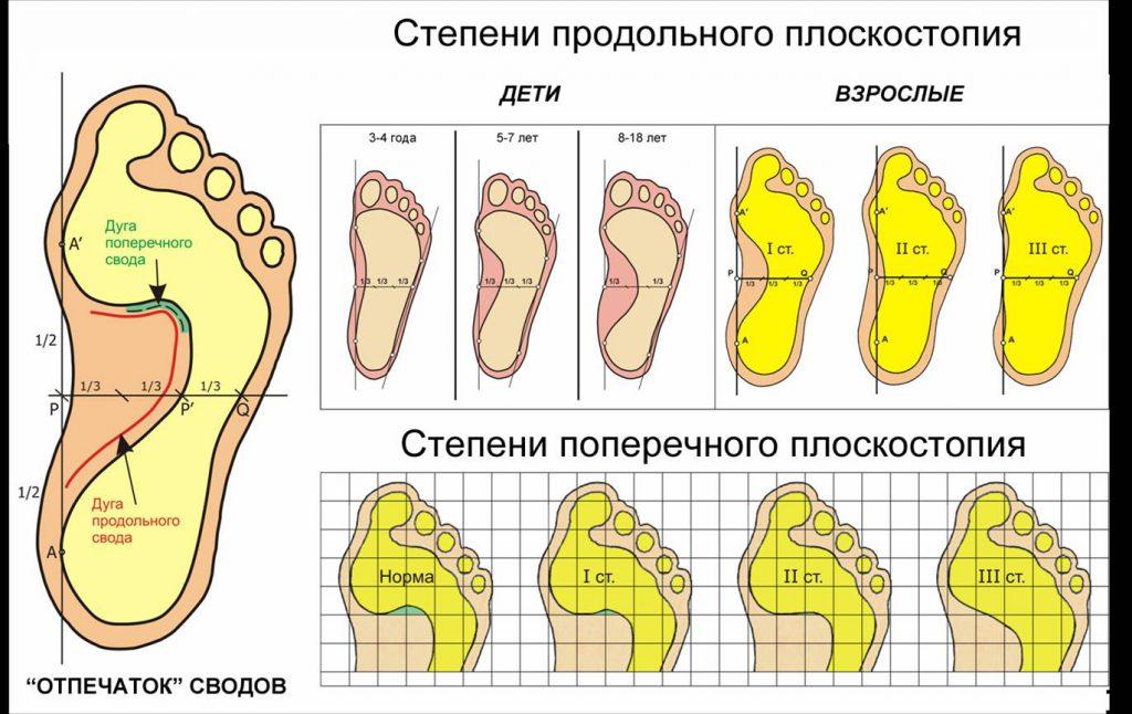 de08b9ed7d0041 Як визначити плоскостопість в домашніх умовах у дітей і дорослих: лікування,  профілактика