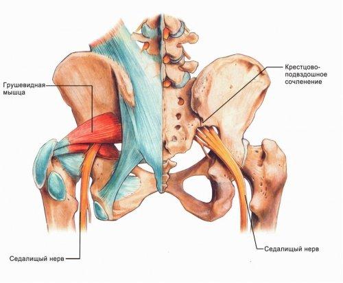 Лечение защемления седалищного нерва отзывы