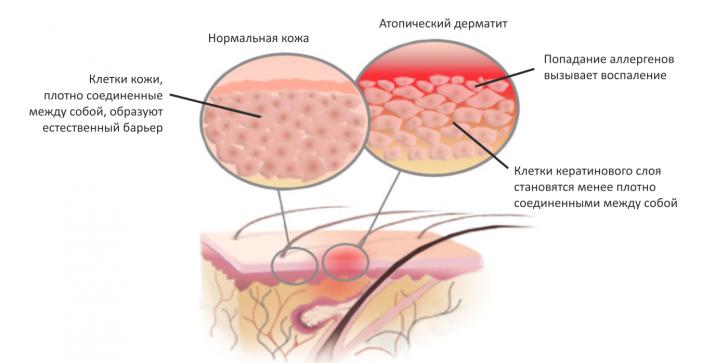 Можно ли вылечить атопический дерматит иглоукалыванием